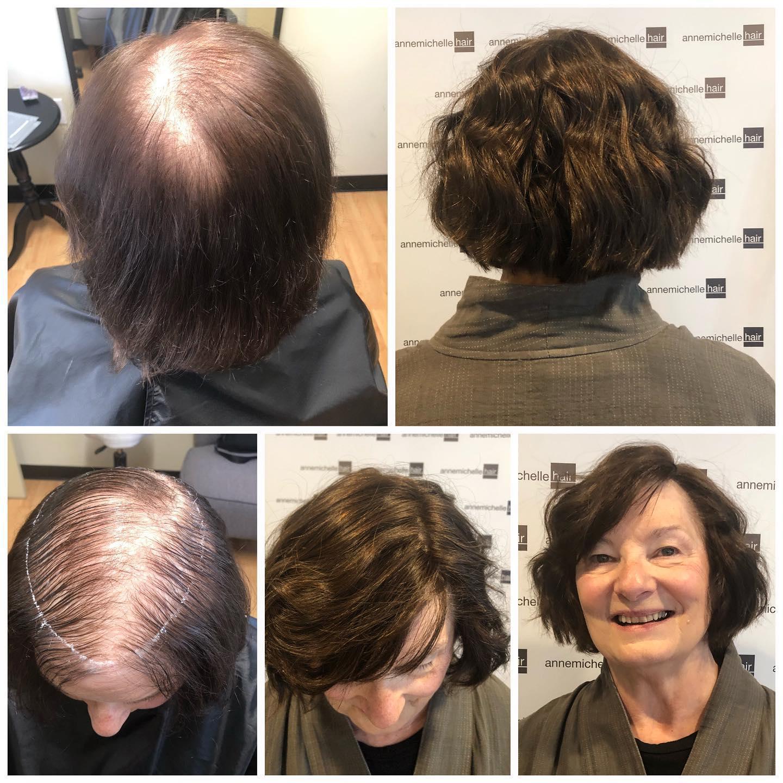 Expert Hair Loss Solutions