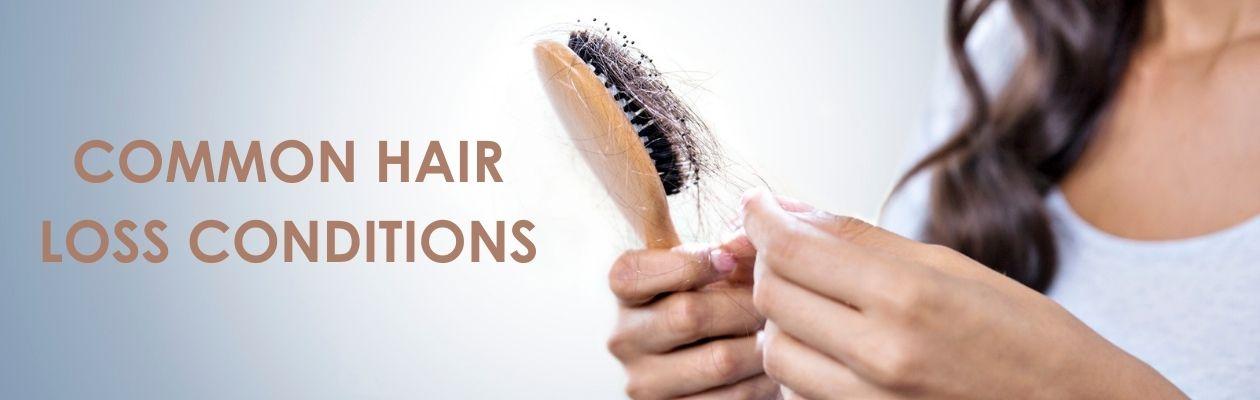 Common Hair Loss Conditions Rituals Hair Lab Gainsborough