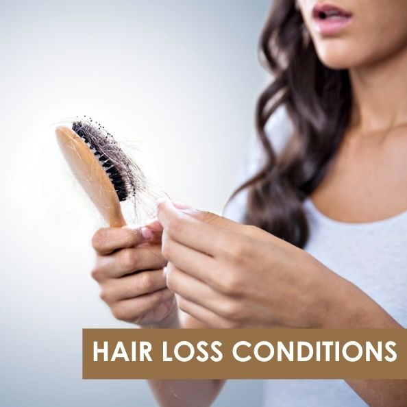 Hair Loss Conditions